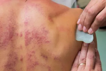 guasha therapie
